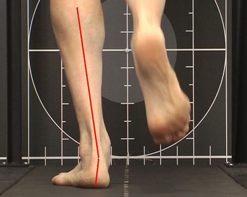 orthotic pic for blog & running orthotic segment